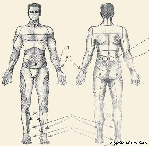 Симптомы расширенные зрачки головная боль